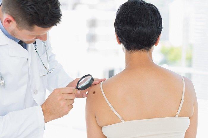 badanie czerniaka przez dermatologa