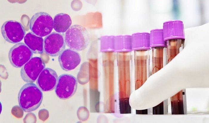 komórki chorego na białaczkę