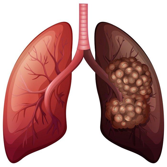 ilustracja raka płuca