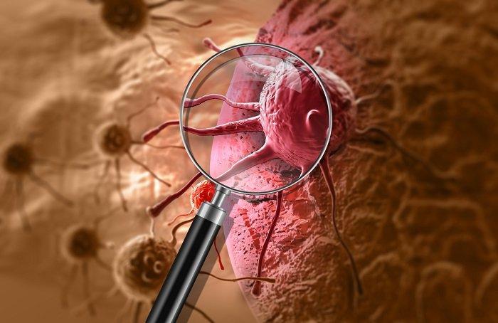 ilustracja komórki nowotworowej