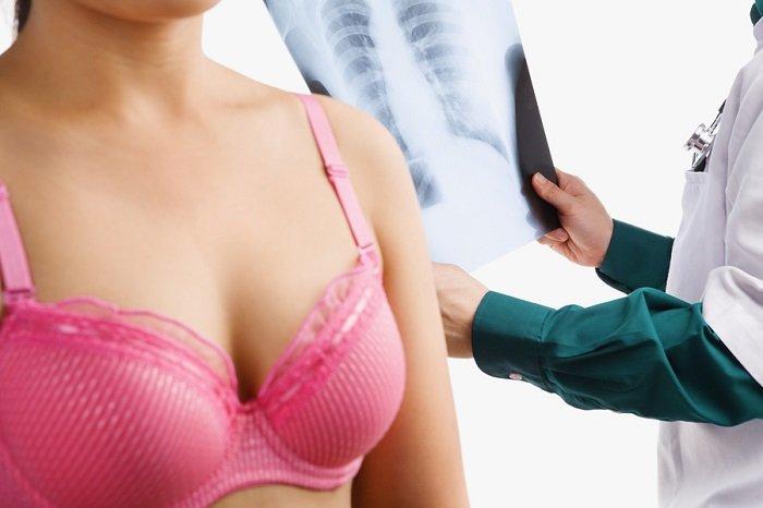kobieta, badanie raka piersi
