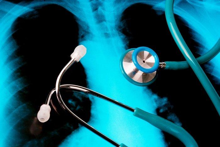 ilustracja raka płuc