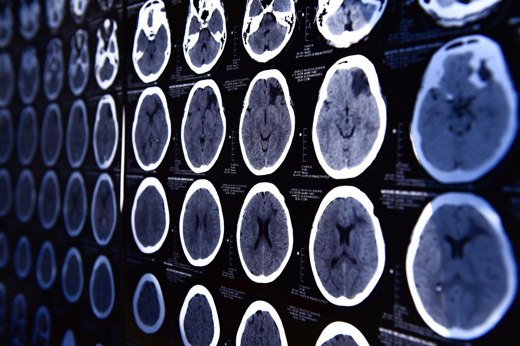 skany mózgu