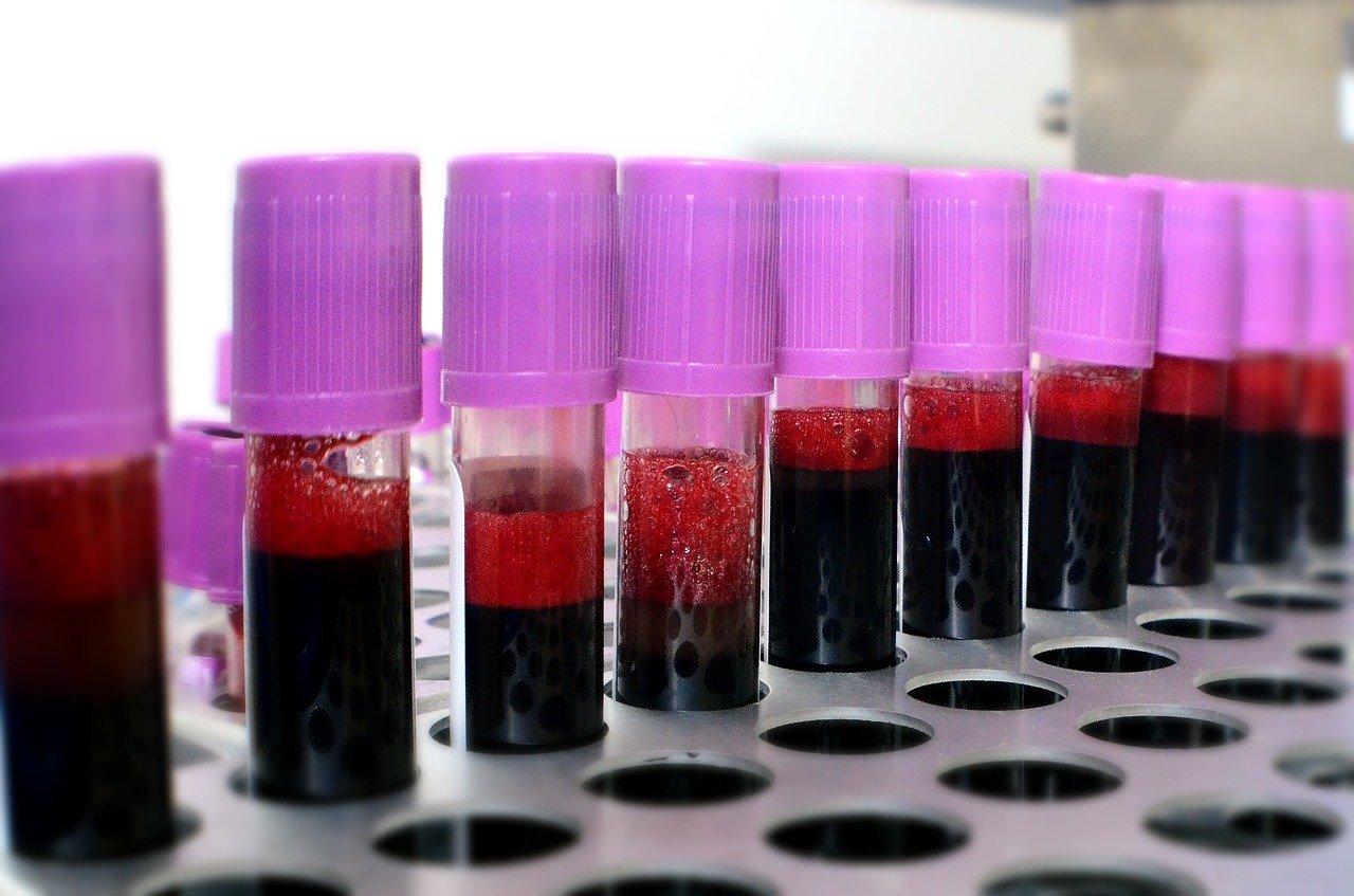 probówki z krwią